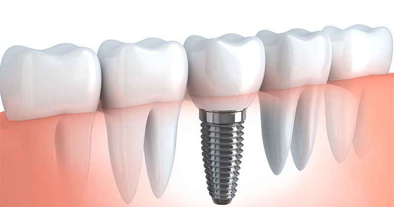 Root canal vs. Dental Implant