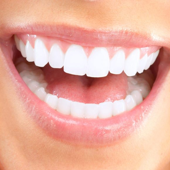 The ABCs of Teeth Whitening